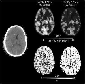 Hình 4 Hình ảnh Xenon CT cho thấy lưu lượng máu não (CBF) giảm và tỷ lệ trích xuất O2 (OEF) tăng sau khi tăng thông khí.