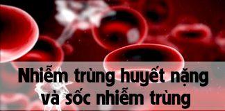 Nhiễm trùng huyết nặng và sốc nhiễm trùng