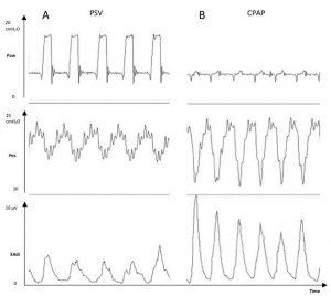 Hình 3. Các đường cong của bệnh nhân thở máy cho thấy sự gia tăng áp lực thực quản (Pes, cmH2O) và hoạt động điện của cơ hoành (EAdi, V) từ giai đoạn có thông khí hỗ trợ áp lực (PSV) +8 cmH2O và áp lực dương cuối thì thở ra +5 cmH2O (Bảng A) đến một khoảng thời gian có áp lực đường thở dương liên tục (CPAP) +5 cmH2O (Bảng B).