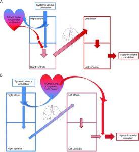 Hình 2. Sơ đồ oxy hóa qua màng ngoài cơ thể VV-ECMO (A) và VA-ECMO (B) và tuần hoàn bệnh nhân.
