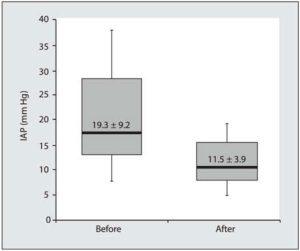 Hình 8. Boxplot cho thấy hiệu quả của việc loại bỏ dịch truyền (sau) đối với áp lực trong ổ bụng (IAP, mm Hg). Đường liền nét biểu thị IAP trung vị với phạm vi liên dải