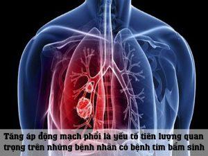 Tăng áp động mạch phổi là yếu tố tiên lượng quan trọng trên những bệnh nhân có bệnh tim bẩm sinh
