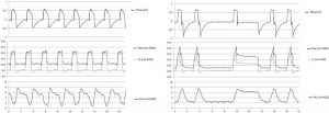Hình 1. Áp lực xuyên phổi (PL) được tạo ra khác nhau trong thông khí cơ học thụ động (bảng trên) và thông khí cơ học hỗ trợ (bảng dưới).