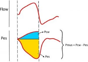 Hình 3. Tính toán áp lực cơ hô hấp (Pmus) từ áp lực thực quản (Pes).