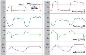 Hình 4. Đo áp lực cao nguyên (Pplat) trong khi thở máy hỗ trợ (AMV, assisted mechanical ventilation).
