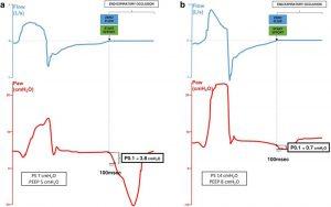 Hình 5. Áp lực tắc đường thở (P0.1) là áp lực đường thở (Paw) được tạo ra trong 100 ms hít vào đầu tiên chống lại tắc nghẽn thì thở ra. Điều quan trọng, thời gian 100 ms cho tính toán P0.1 nên bắt đầu tại điểm mà đường cong lưu lượng thở ra bằng 0 (đường đứt nét) để điều chỉnh auto-PEEP. (Từ [34] với sự cho phép)