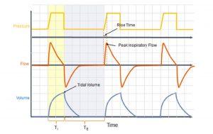 Hình 1 Pressure control ventilation. Máy cung cấp một nhịp thở với áp lực cài đặt trước với dạng sóng lưu lượng hằng định