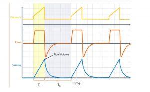 Hình 2 Volume control ventilation. Máy cung cấp một thể tích cài đặt trước với dạng sóng lưu lượng hằng định