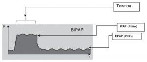 Hình 3: Áp lực/thời gian dạng sóng trong áp lực đường thở hai mức áp lực dương. TIPAP - thời gian áp lực đường thở dương trong thì hít vào; IPAP - Áp lực đường thở dương thì hít vào; EPAP - Áp lực đường thở dương thì thở ra [24]