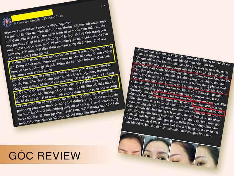Review của người dùng trên các trang web làm đẹp