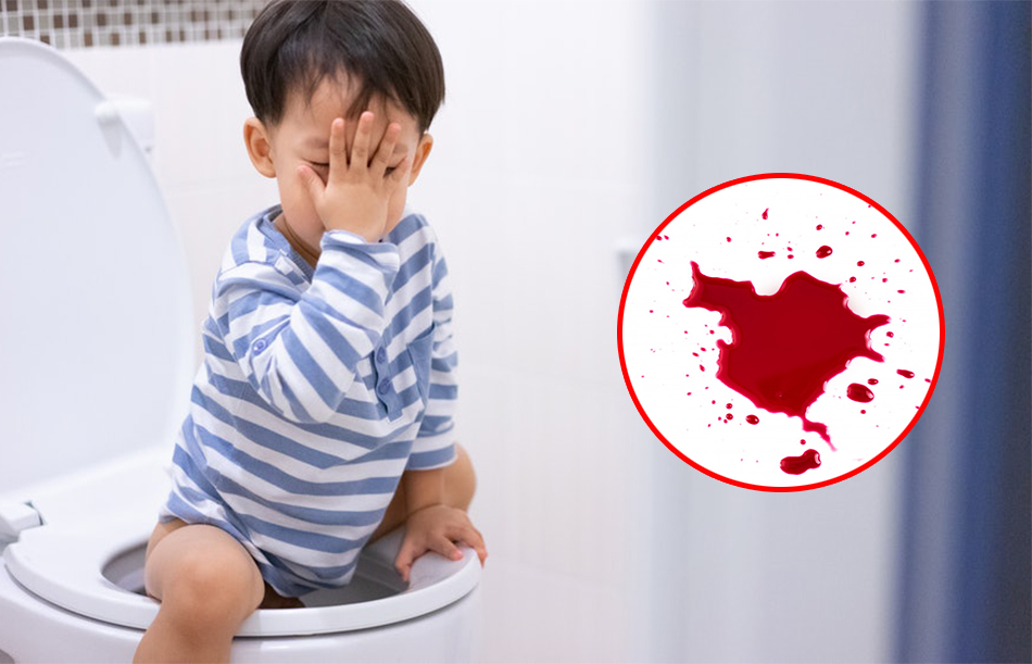 Trẻ đi ngoài ra máu tươi phải làm sao?