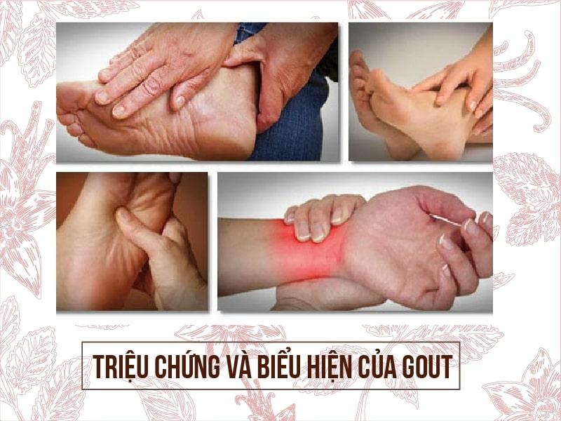 Một số triệu chứng và biểu hiện của Gout