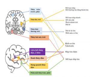 Hình 2 Kích hoạt các vùng não khác nhau trong đột quỵ sau đó là các biến chứng tim mạch cụ thể.