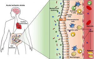 Hình 5 Rối loạn vi sinh vật ruột và rối loạn chức năng tim.