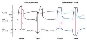 Hình 2. So sánh thông khí kiểm soát hỗ trợ thể tích và kiểm soát hỗ trợ áp lực với các bản ghi thể tích khí lưu thông (Vt) và áp lực đường thở và áp lực thực quản (lần lượt là Paw và Pes). Mũi tên đỏ minh họa sự khác biệt giữa áp lực đường thở và áp lực thực quản, đó là áp lực xuyên phổi hoặc PL. PL tăng với nỗ lực của bệnh nhân chỉ trong quá trình kiểm soát áp lực.