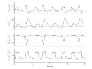 Hình 4. Ảnh hưởng của các nỗ lực thở tự phát không liên tục được chỉ định bởi sự thay đổi áp lực thực quản âm tính trong một chế độ thông khí hai mức áp lực. Chỉ riêng việc theo dõi áp lực đường thở không cho phép người ta hiểu những gì bệnh nhân đang làm. Từ trên xuống dưới: theo dõi lưu lượng, thể tích, áp lực thực quản và áp lực đường thở. Paw = áp lực đường thở; Pes = áp lực thực quản; Vt = thể tích khí lưu thông.