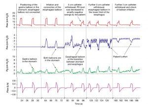Hình 5. Dạng sóng áp lực trong khi đặt ống thông thực quản. Paw = áp lực đường thở; Pes = áp lực thực quản; PG = áp lực dạ dày; PS = hỗ trợ áp lực.