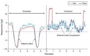 Hình 6. Thử nghiệm bít tắc ở bệnh nhân thở tự nhiên (trái) và ở bệnh nhân dùng thuốc giãn cơ (phải). Trong trường hợp trước, đường thở đã bị bít tắc trong nỗ lực của bệnh nhân; trong trường hợp thứ hai, đường thở đã bị bít tắc trong khi áp dụng ép ngực bên ngoài. Trục Paw đã được dịch chuyển để đạt được sự chồng chéo của hai tín hiệu. Paw = áp lực đường thở; Pes = áp lực thực quản.