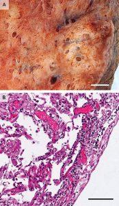 Hình 1. Viêm tế bào lympho ở phổi từ một bệnh nhân đã chết từ Covid-19.