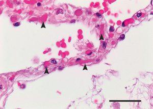 Hình 2. Vi huyết khối trong Vách ngăn giữa phế nang của một bệnh nhân đã chết do Covid-19.