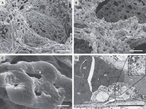 Hình 3. Thay đổi vi mạch trong phổi từ những bệnh nhân đã chết từ Covid-19.