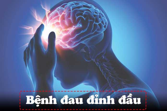 Bệnh đau đỉnh đầu