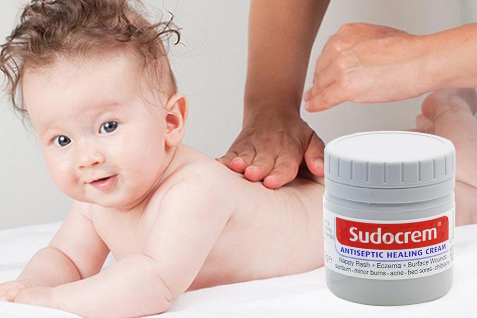 Sudocrem trị hăm tã cho trẻ em