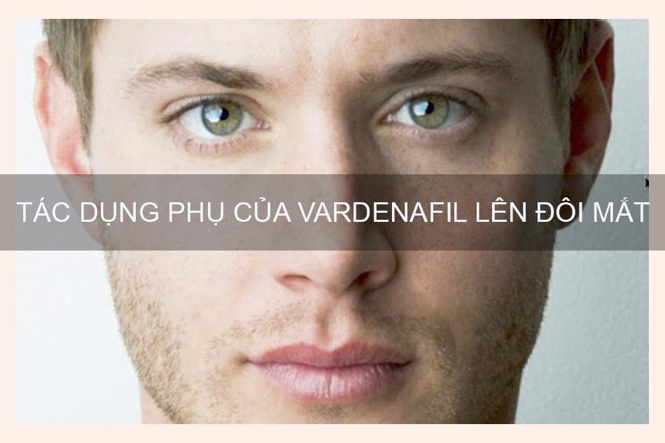 Tác dụng phụ của Vardenafil có ảnh hưởng gì tới mắt