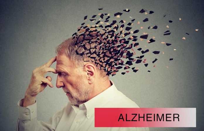 Bệnh Alzheimer