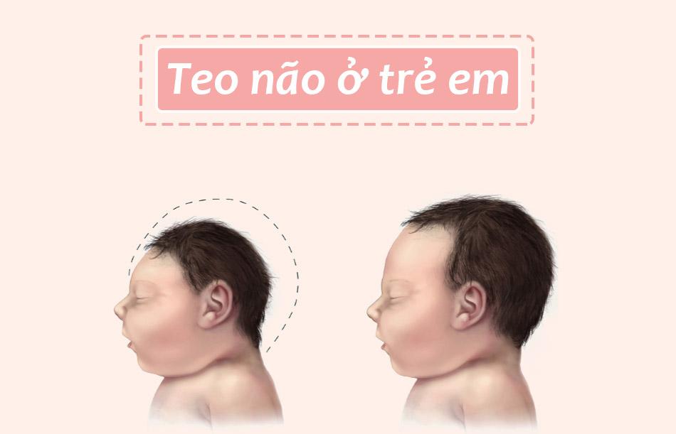 Bệnh teo não ở trẻ em