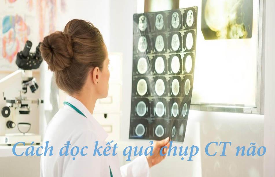 Cách đọc kết quả chụp CT não