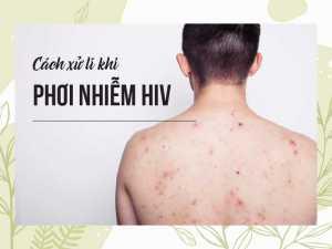 Cách xử lí khi phơi nhiễm HIV