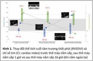 Hình 1. Thay đổi thể tích cuối tâm trương thất phải (RVEDVI) và chỉ số tim (CI: cardiac index) trước thở máy nằm sấp, sau thở máy nằm sấp 1 giờ và sau thở máy nằm sấp 16 giờ (khi nằm ngửa lại)