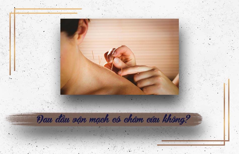Đau đầu vận mạch có nên châm cứu?