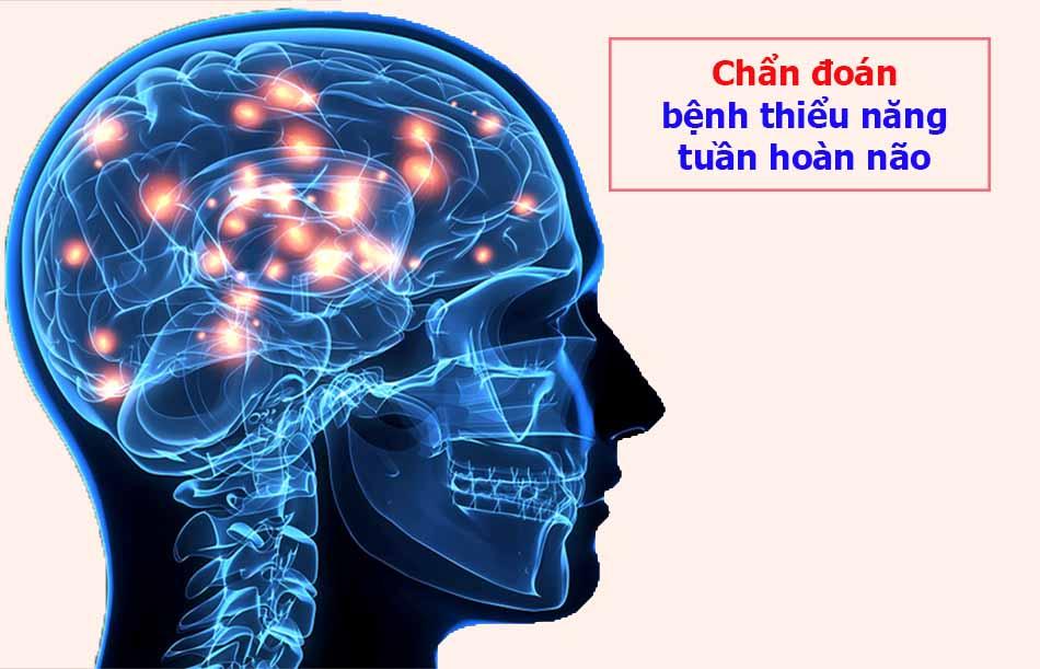Chẩn đoán bệnh thiểu năng tuần hoàn não