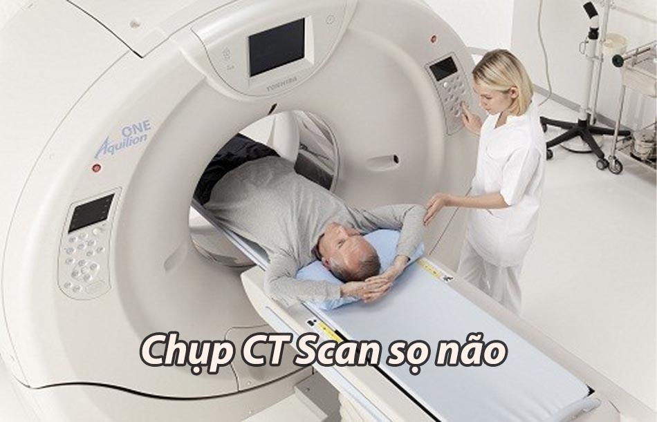 Chẩn đoán phình mạch máu não