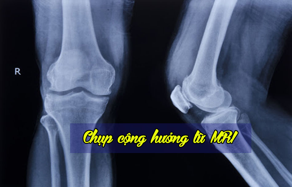 Chụp khớp gối bằng cộng hưởng từ MRI