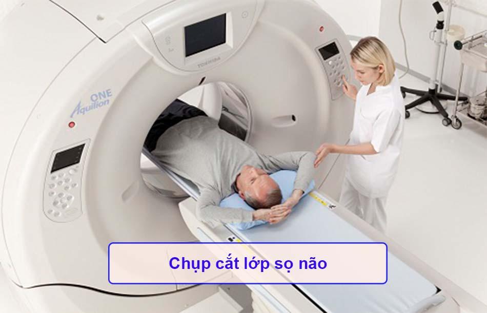 Chụp cắt lớp sọ não
