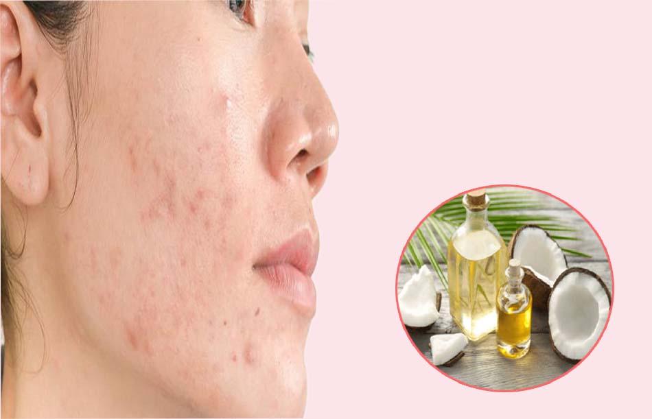 Dùng dầu dừa nguyên chất thoa lên da