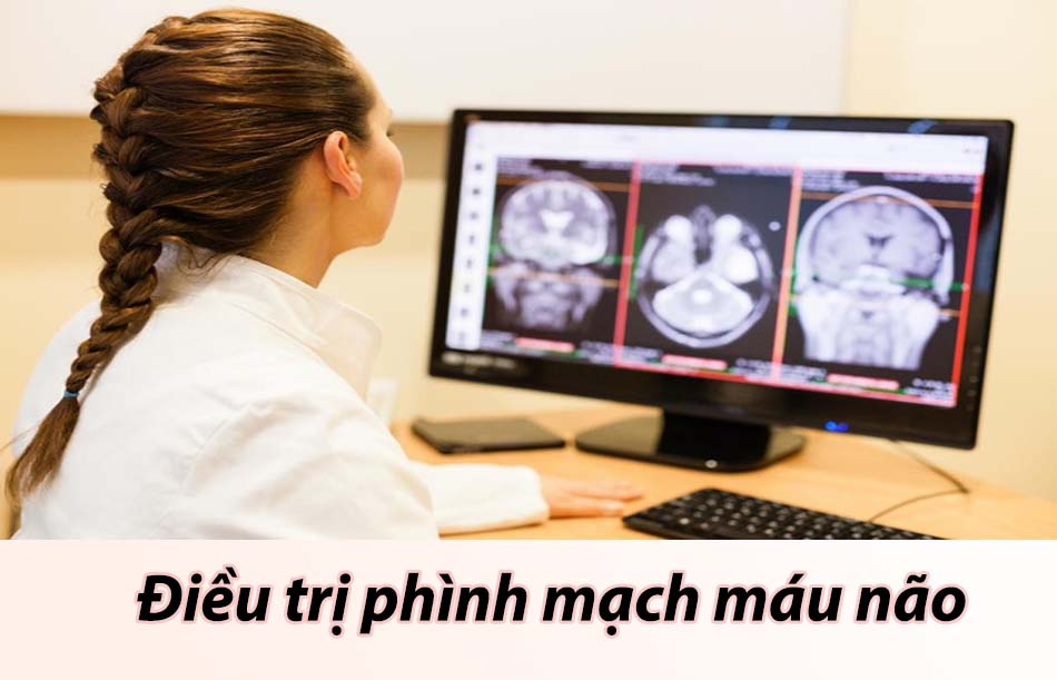 Điều trị phình mạch máu não