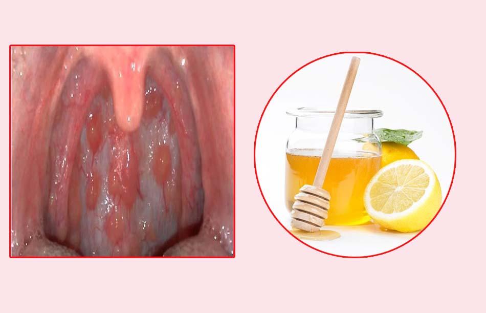 chữa viêm họng hạt có mủ với chanh và mật ong.