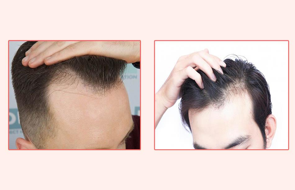 Dùng trong các trường hợp như nam giới ít tóc, tóc rụng nhiều hay hói đầu