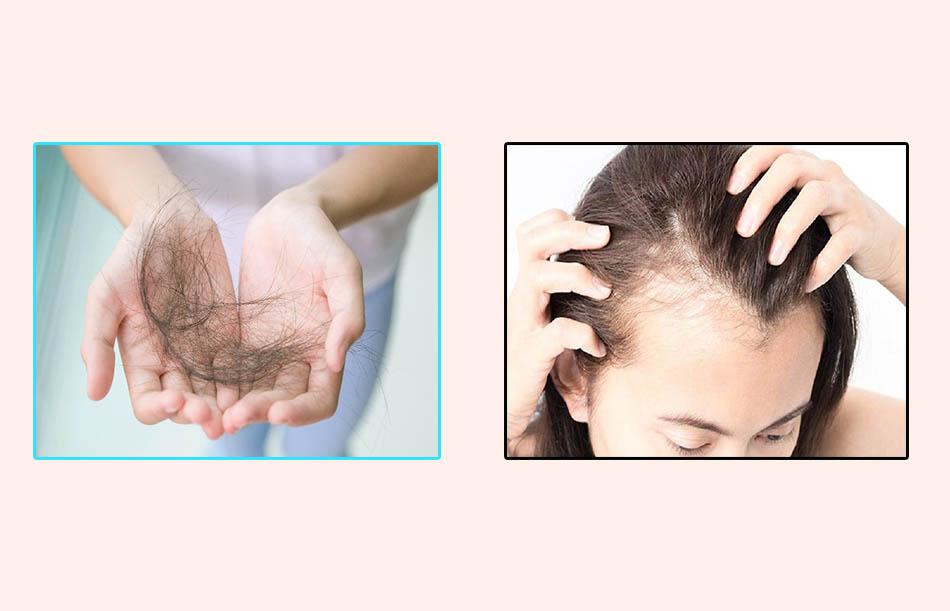 Những người có mái tóc khô, xơ, dễ gãy rụng