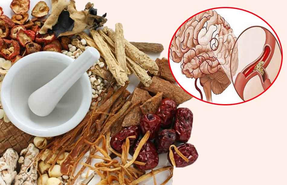 Điều trị thiểu năng tuần hoàn não bằng đông y