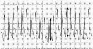 Hình 3. Một đường biểu diễn dạng sóng động mạch cho thấy sự thay đổi theo hô hấp của dạng sóng động mạch và sự khác biệt giữa áp lực xung trong chu kỳ hô hấp.