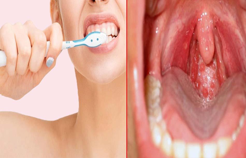 Dùng chung bàn chải đánh răng có nguy cơ lây viêm họng hạt có mủ