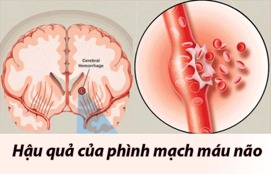 Hậu quả phình mạch máu não