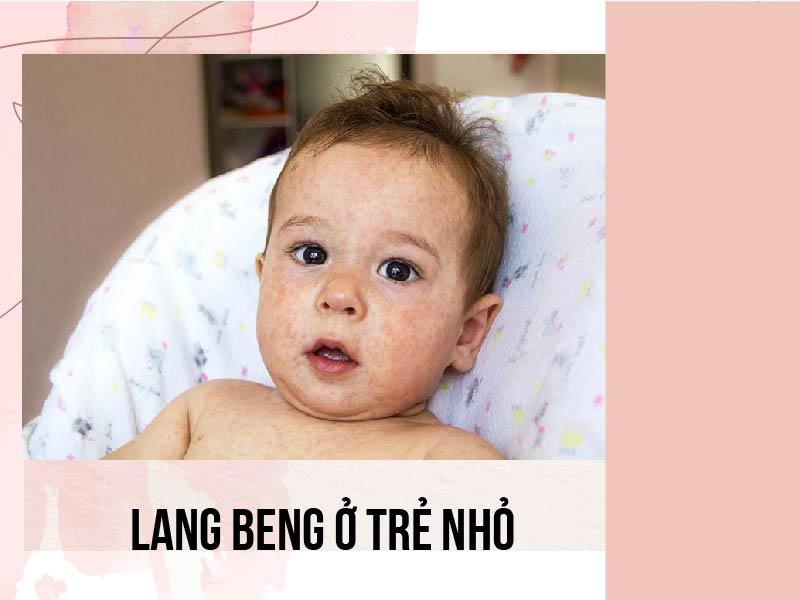 Bệnh lang beng ở trẻ nhỏ có thể do nhiều nguyên nhân