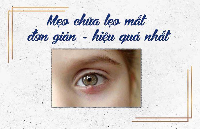 Mẹo chữa lẹo mắt