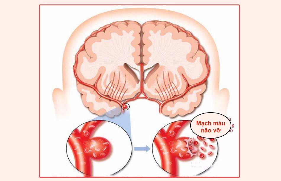 Mạch máu não vỡ ra là nguyên nhân gây xuất huyết não